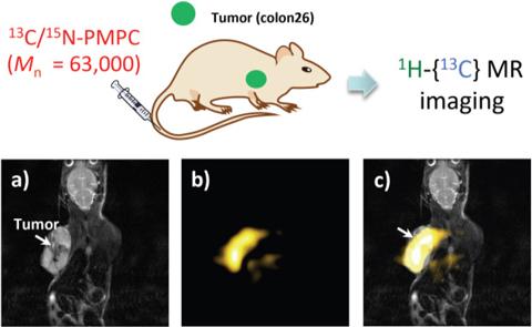 13C/15N-PMPCプローブを投与したマウスの in vivo MRI画像化